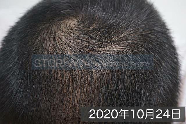 AGA治療4ヶ月目の頭頂部