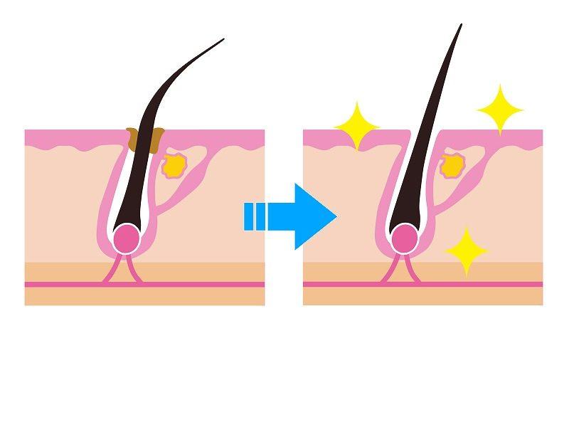 毛髪の皮脂の変化