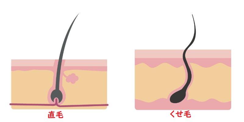 直毛とくせ毛の違い